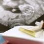 Homeopatie při porodu